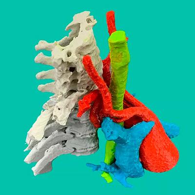 Biomodelo-3D-Cirugia